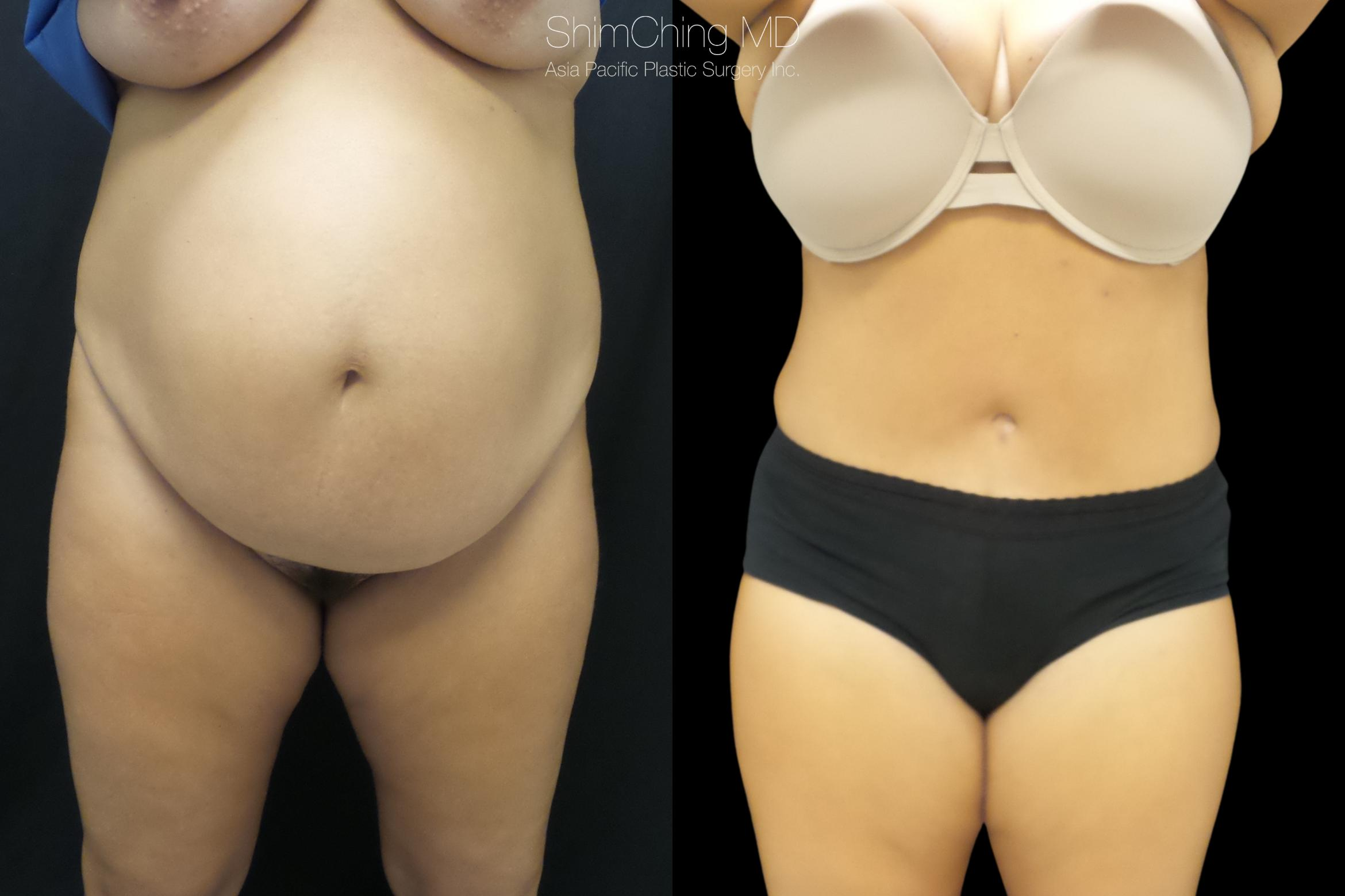 Abdominoplasty Case 301 Before & After Front | Honolulu, HI | Shim Ching, MD: Asia Pacific Plastic Surgery
