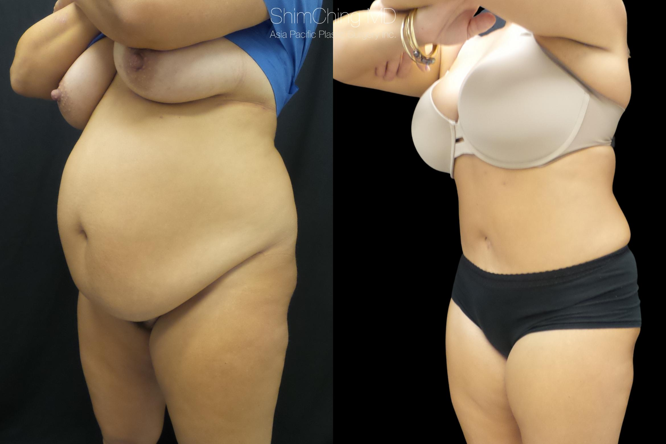 Abdominoplasty Case 301 Before & After Right Oblique | Honolulu, HI | Shim Ching, MD: Asia Pacific Plastic Surgery
