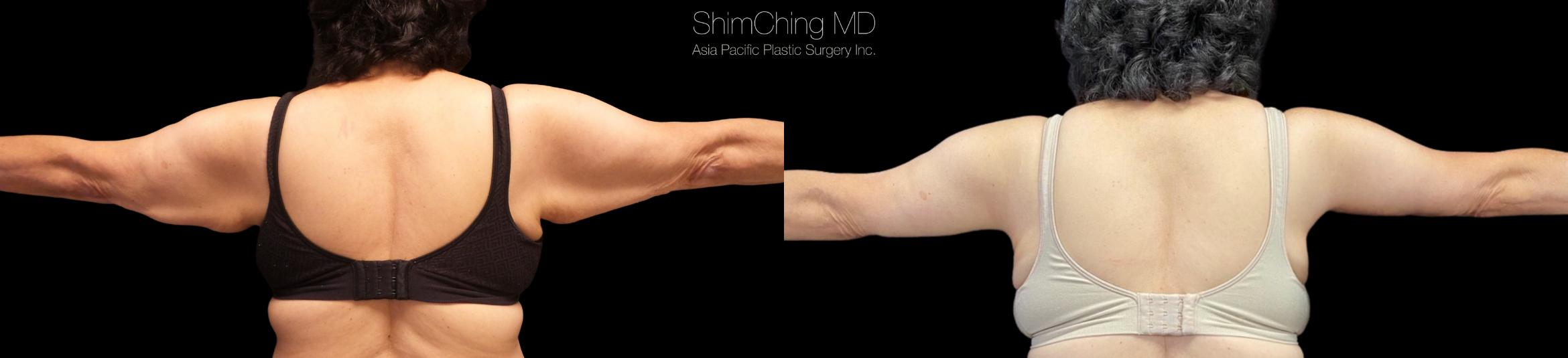 Arm Lift Case 317 Before & After Back | Honolulu, HI | Shim Ching, MD: Asia Pacific Plastic Surgery