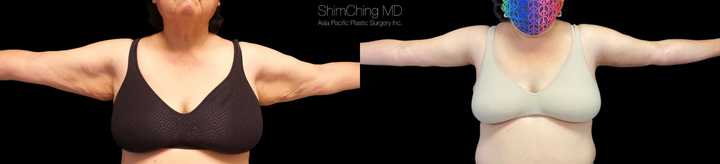 Arm Lift Case 317 Before & After Front | Honolulu, HI | Shim Ching, MD: Asia Pacific Plastic Surgery