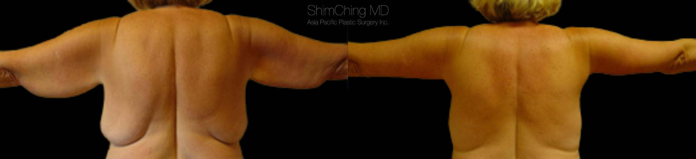Homepage Featured Cases Case 98 Before & After Back | Honolulu, HI | Shim Ching, MD: Asia Pacific Plastic Surgery