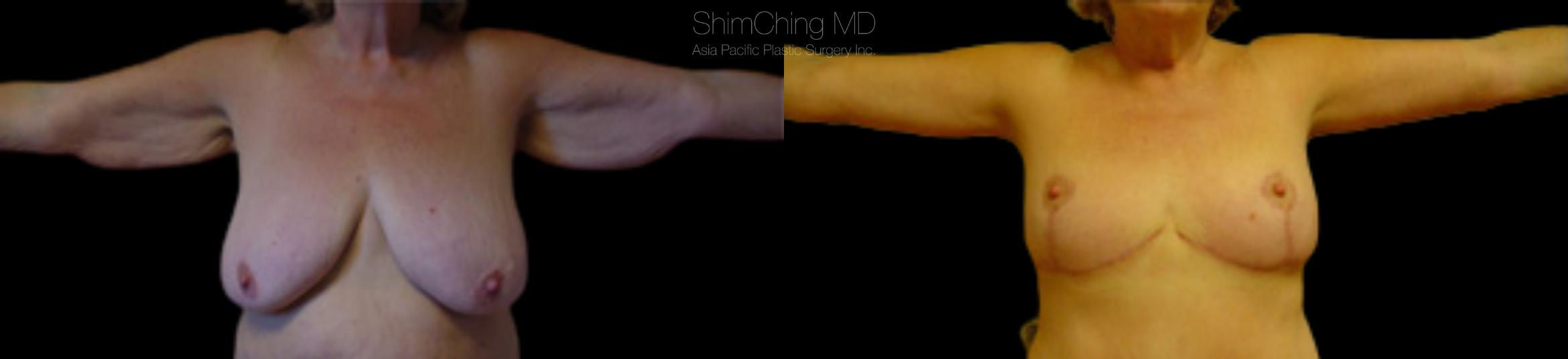 Homepage Featured Cases Case 98 Before & After Front | Honolulu, HI | Shim Ching, MD: Asia Pacific Plastic Surgery