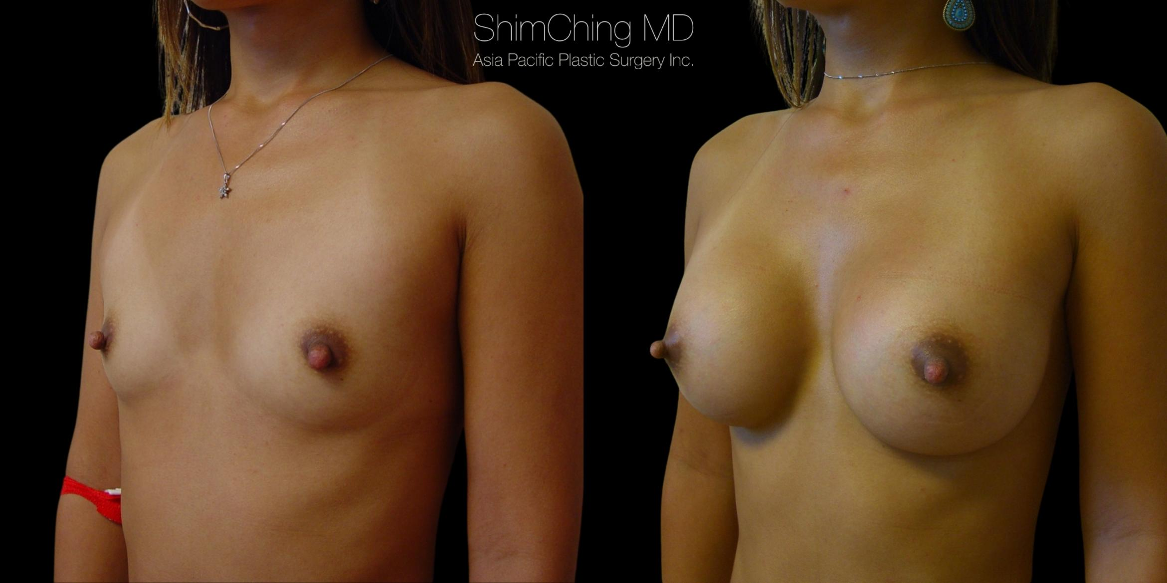 Asian Breast Implants Case 361 Before & After Right Oblique | Honolulu, HI | Shim Ching, MD: Asia Pacific Plastic Surgery