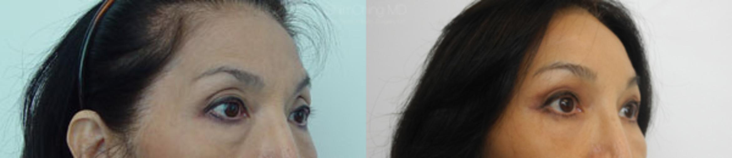 Asian Cosmetic Surgery Case 216 Before & After View #1 | Honolulu, HI | Shim Ching, MD: Asia Pacific Plastic Surgery