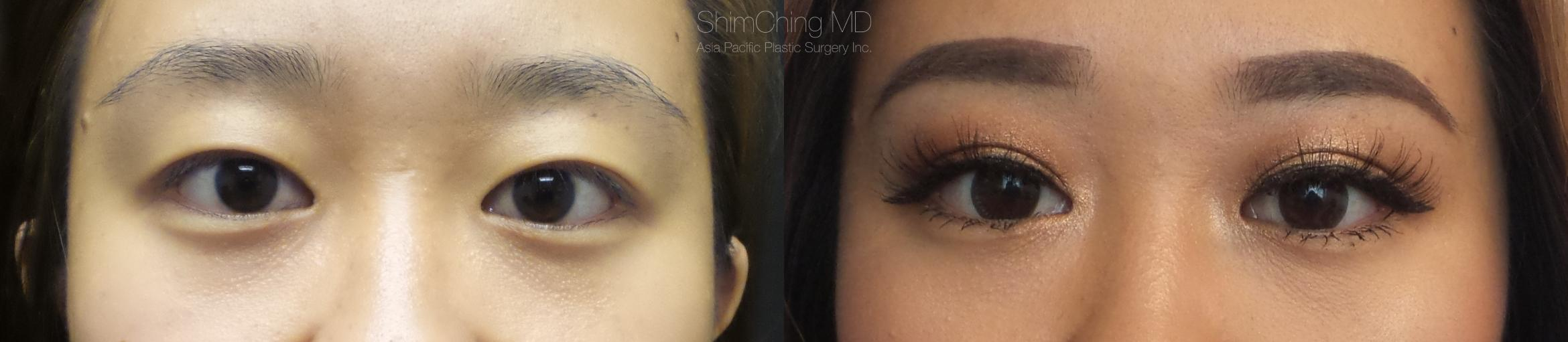 Asian Eyelid Case 1 Before & After View #1 | Honolulu, HI | Shim Ching, MD: Asia Pacific Plastic Surgery