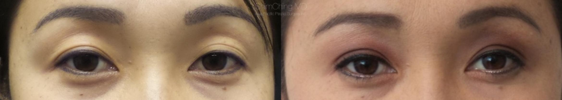 Asian Eyelid Case 13 Before & After View #1 | Honolulu, HI | Shim Ching, MD: Asia Pacific Plastic Surgery