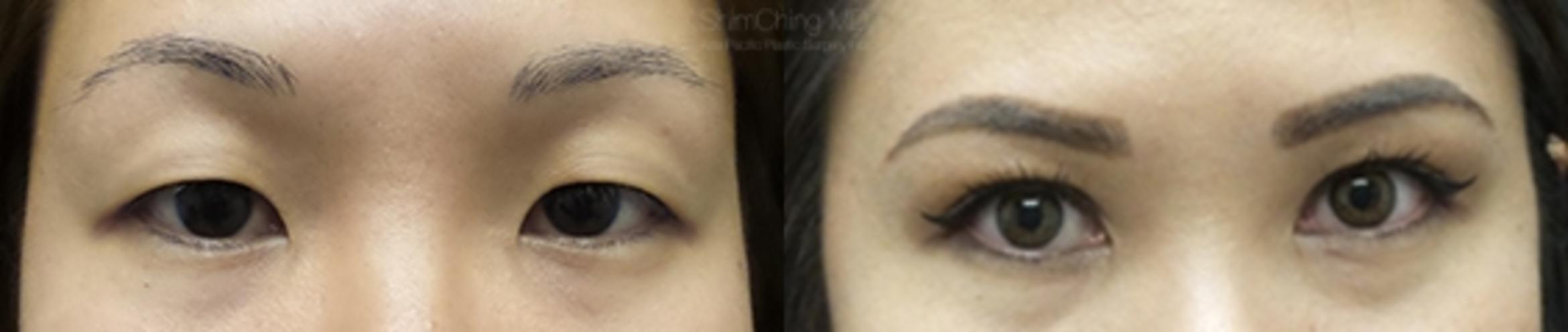 Asian Eyelid Case 153 Before & After View #1 | Honolulu, HI | Shim Ching, MD: Asia Pacific Plastic Surgery
