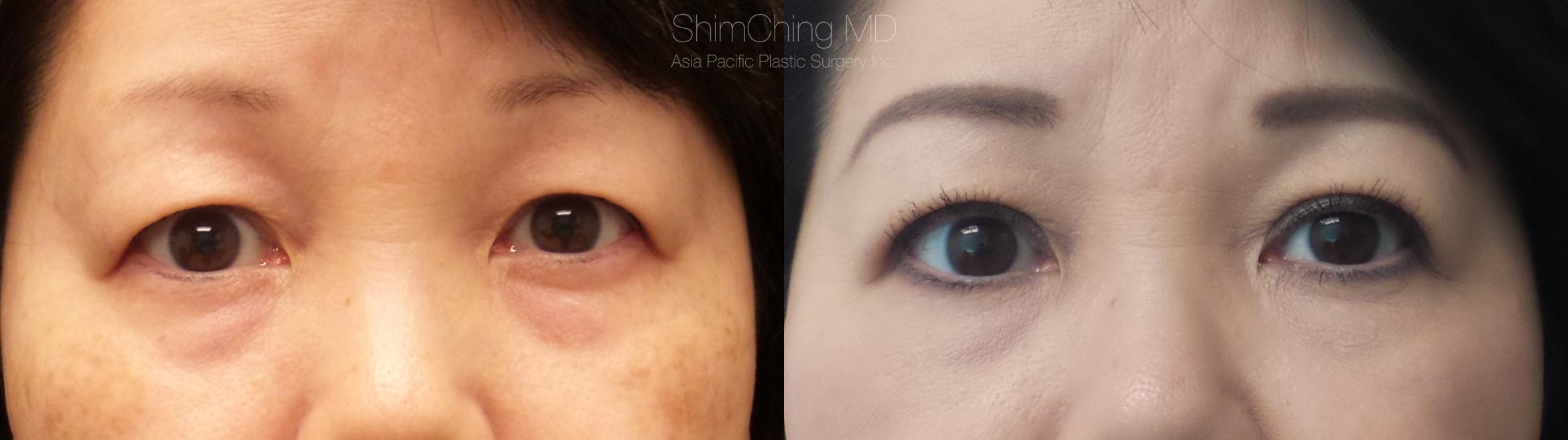Asian Eyelid Case 282 Before & After Front | Honolulu, HI | Shim Ching, MD: Asia Pacific Plastic Surgery
