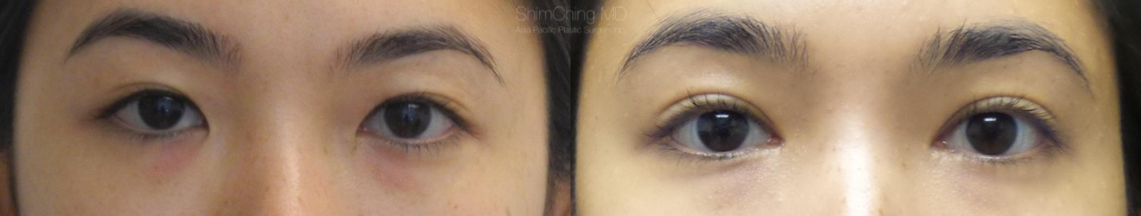 Asian Eyelid Case 3 Before & After View #1 | Honolulu, HI | Shim Ching, MD: Asia Pacific Plastic Surgery
