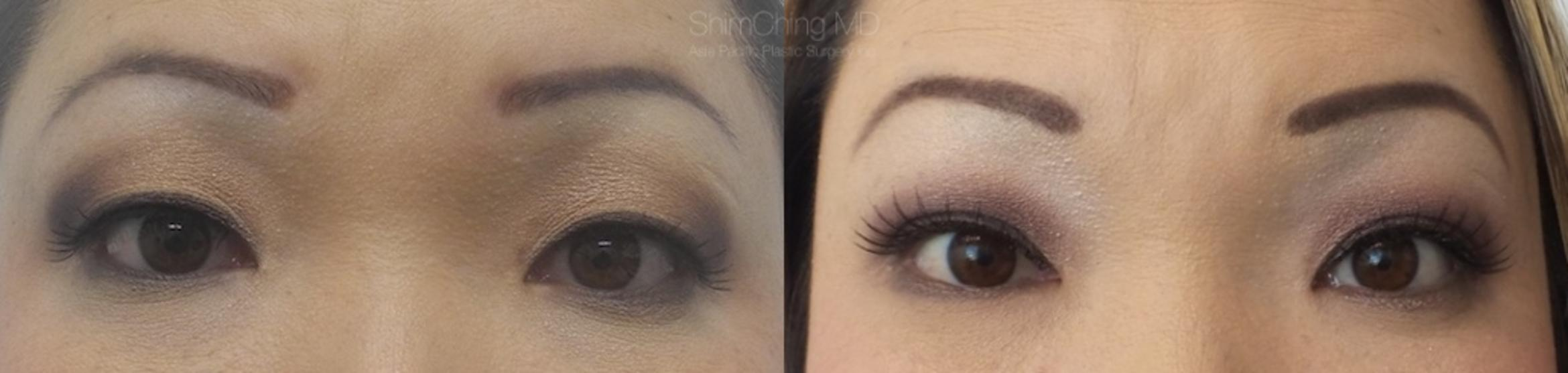 Asian Eyelid Case 4 Before & After View #1 | Honolulu, HI | Shim Ching, MD: Asia Pacific Plastic Surgery