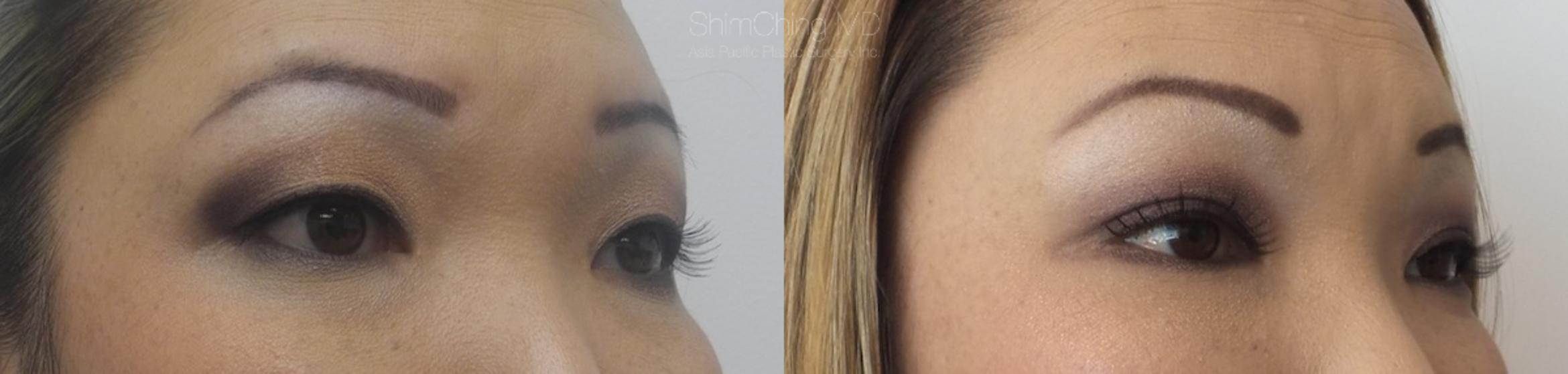 Asian Eyelid Case 4 Before & After View #3 | Honolulu, HI | Shim Ching, MD: Asia Pacific Plastic Surgery