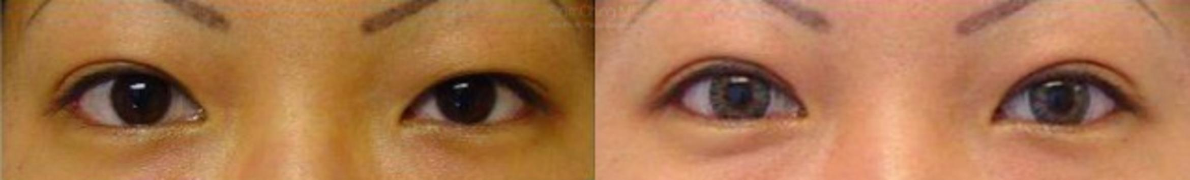 Asian Eyelid Case 5 Before & After View #1 | Honolulu, HI | Shim Ching, MD: Asia Pacific Plastic Surgery