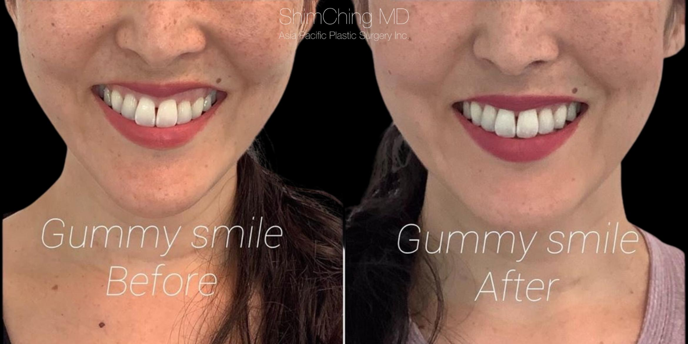Botox Case 359 Before & After Front | Honolulu, HI | Shim Ching, MD: Asia Pacific Plastic Surgery