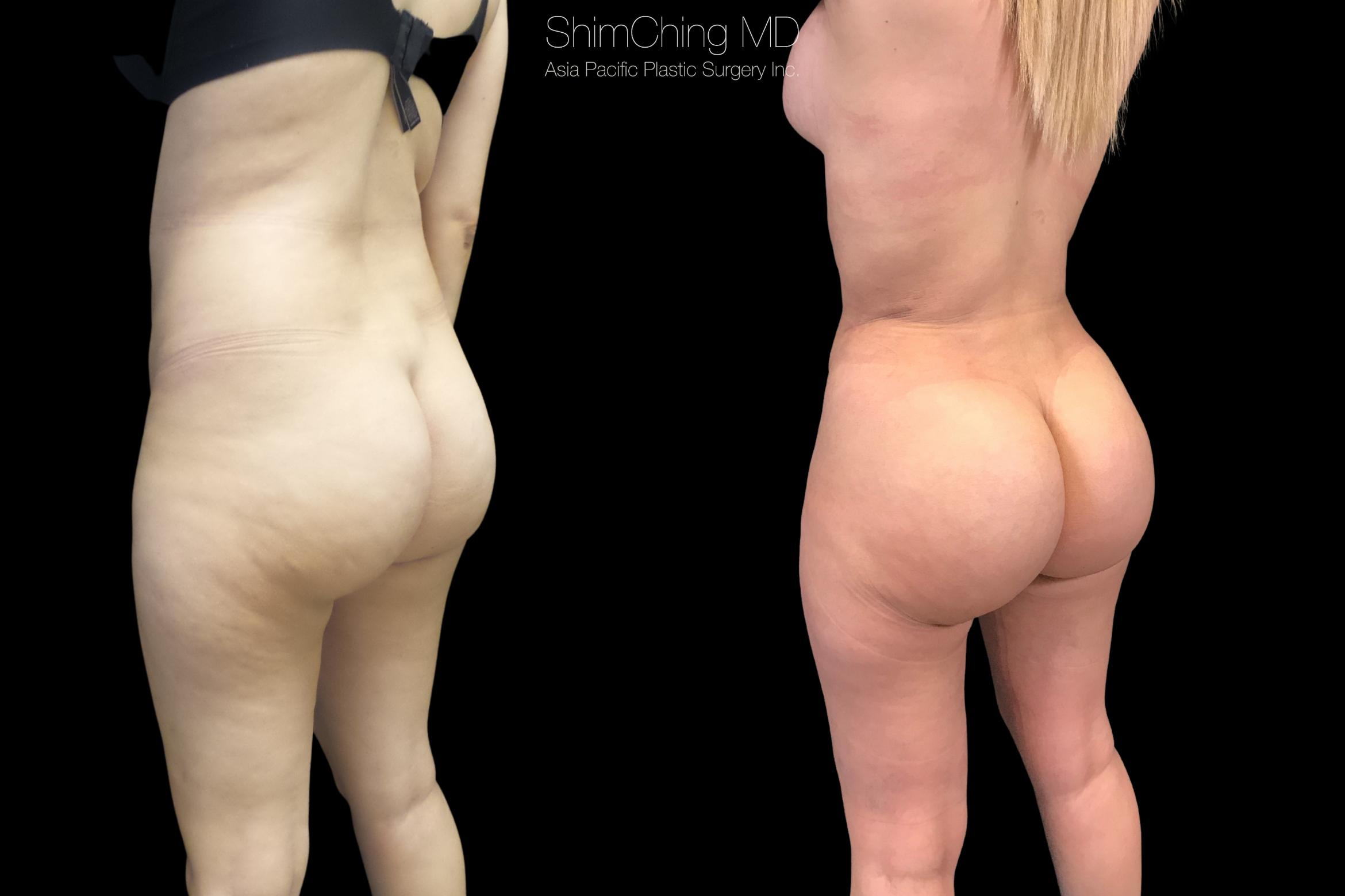 Brazilian Butt Lift Case 289 Before & After Right Oblique | Honolulu, HI | Shim Ching, MD: Asia Pacific Plastic Surgery