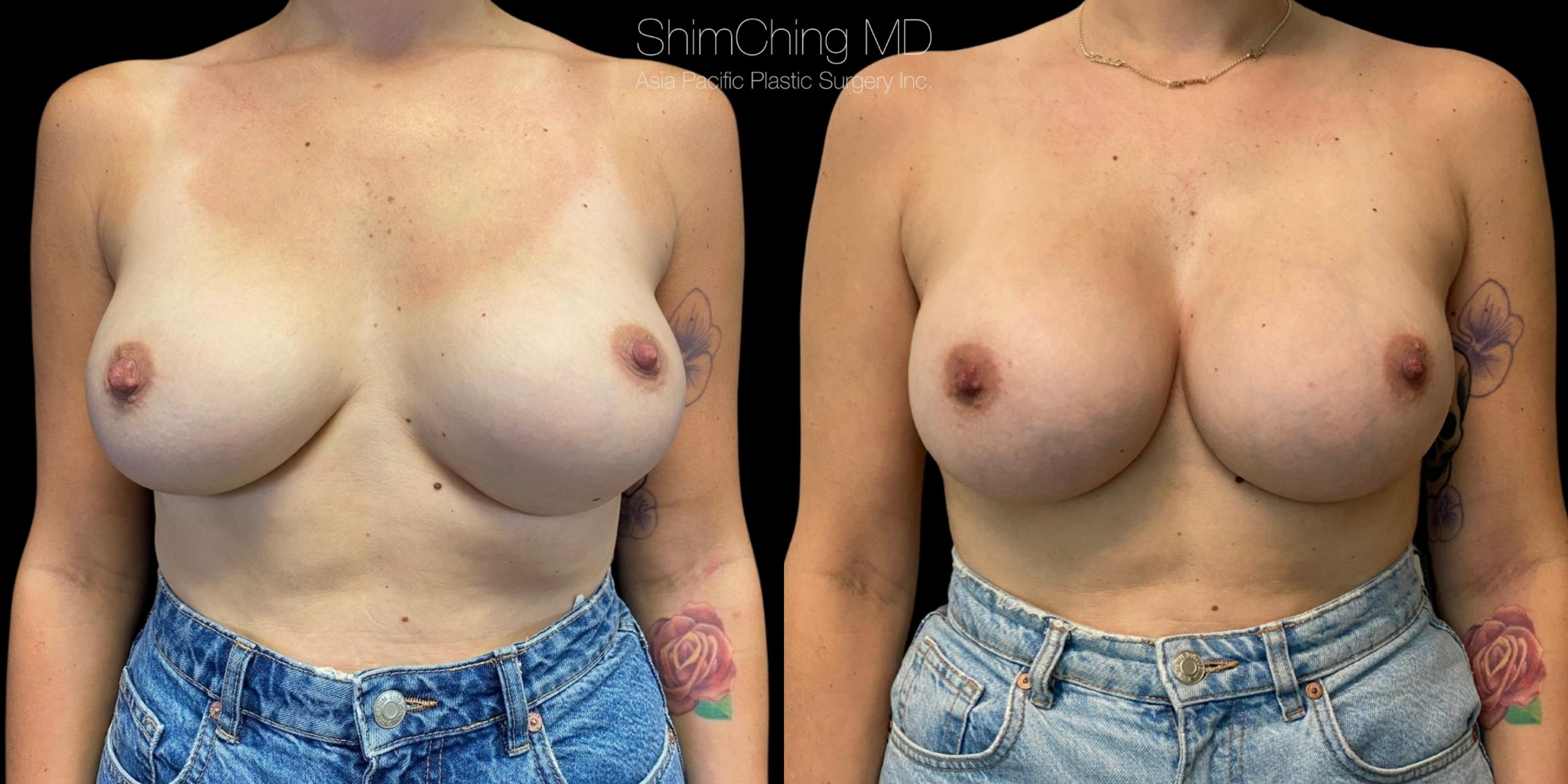 Breast Augmentation Revision Case 362 Before & After Front | Honolulu, HI | Shim Ching, MD: Asia Pacific Plastic Surgery