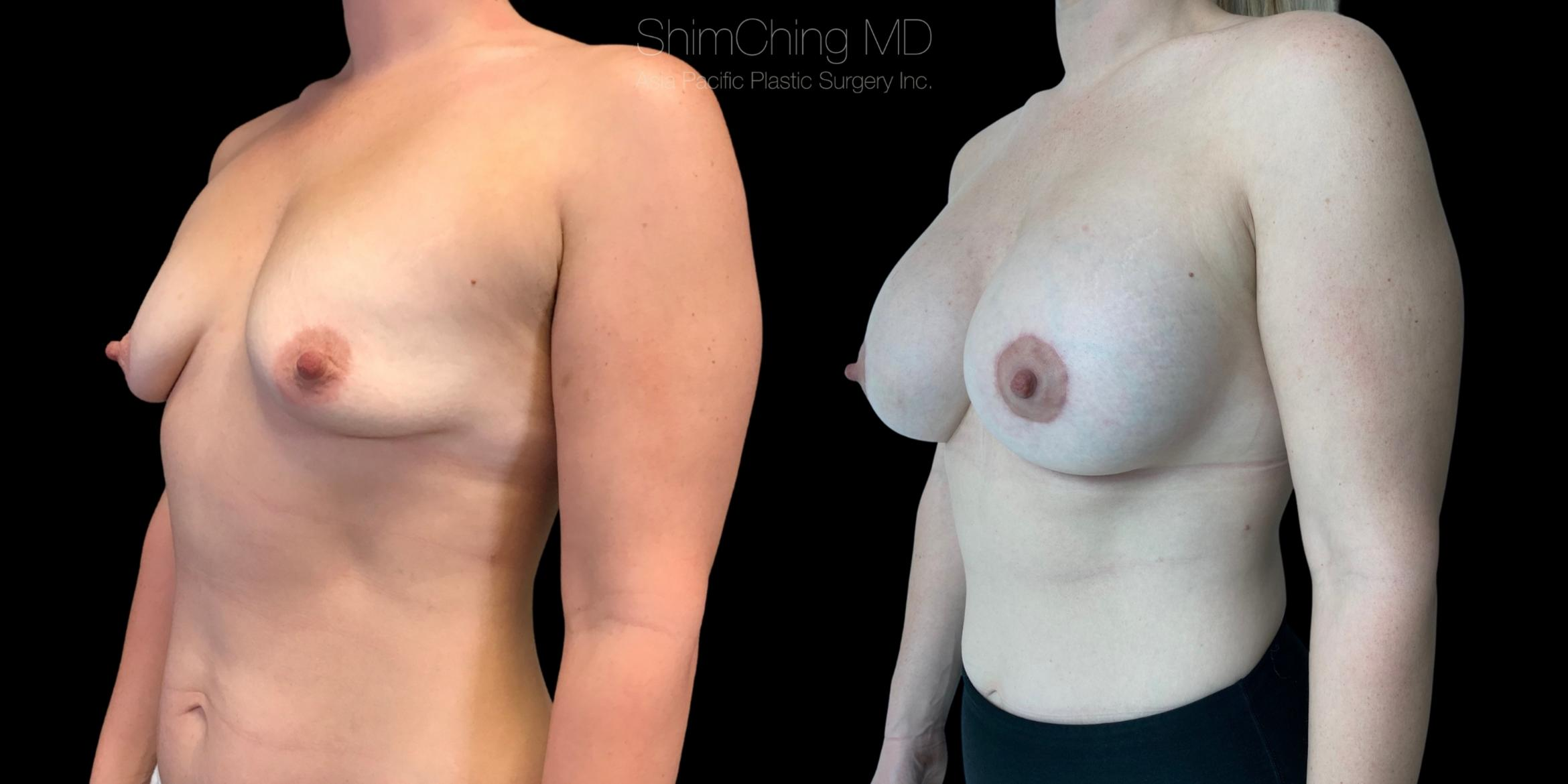 Breast Lift with Implants Case 296 Before & After Right Oblique | Honolulu, HI | Shim Ching, MD: Asia Pacific Plastic Surgery