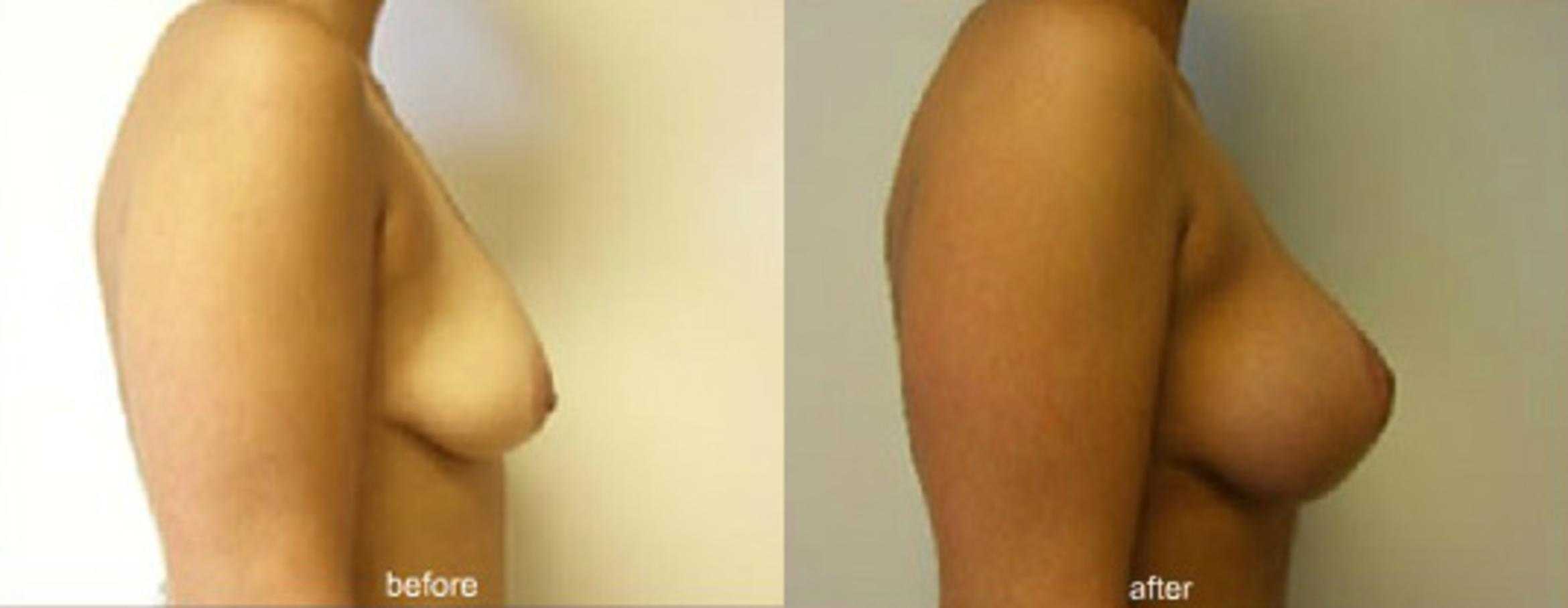 Breast Lift with Implants Case 55 Before & After View #1 | Honolulu, HI | Shim Ching, MD: Asia Pacific Plastic Surgery