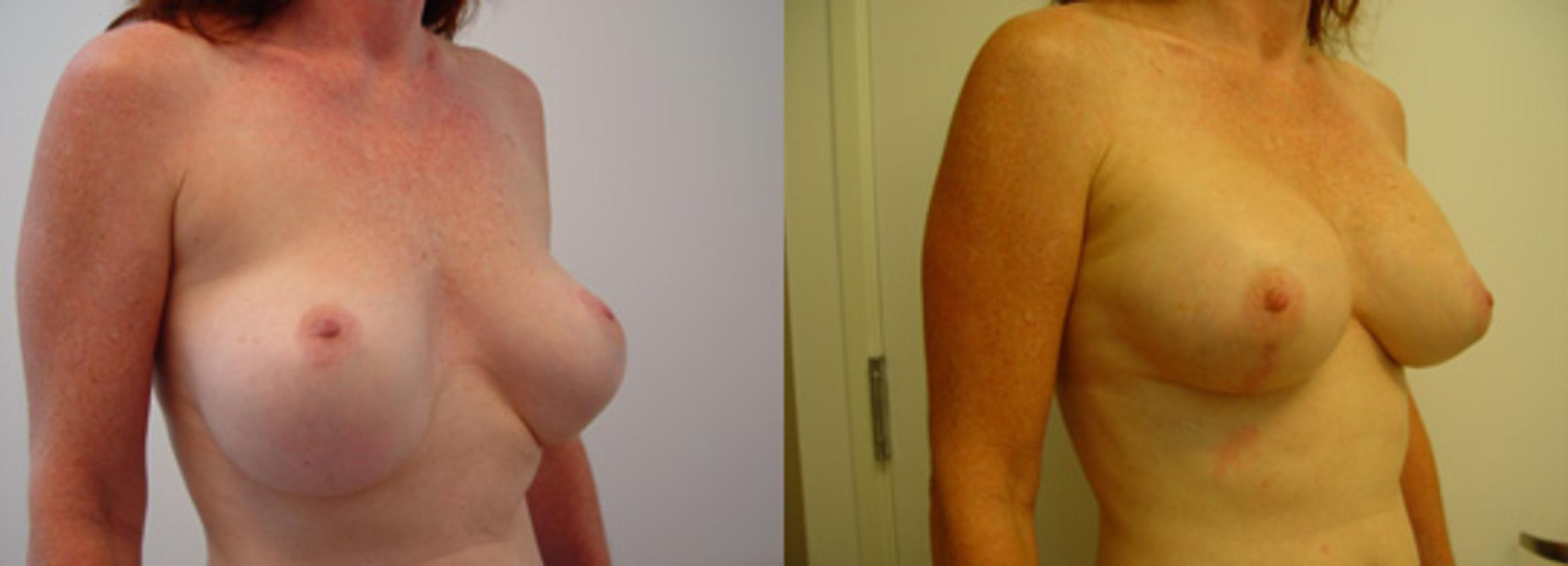 Breast Lift with Implants Case 57 Before & After View #1 | Honolulu, HI | Shim Ching, MD: Asia Pacific Plastic Surgery