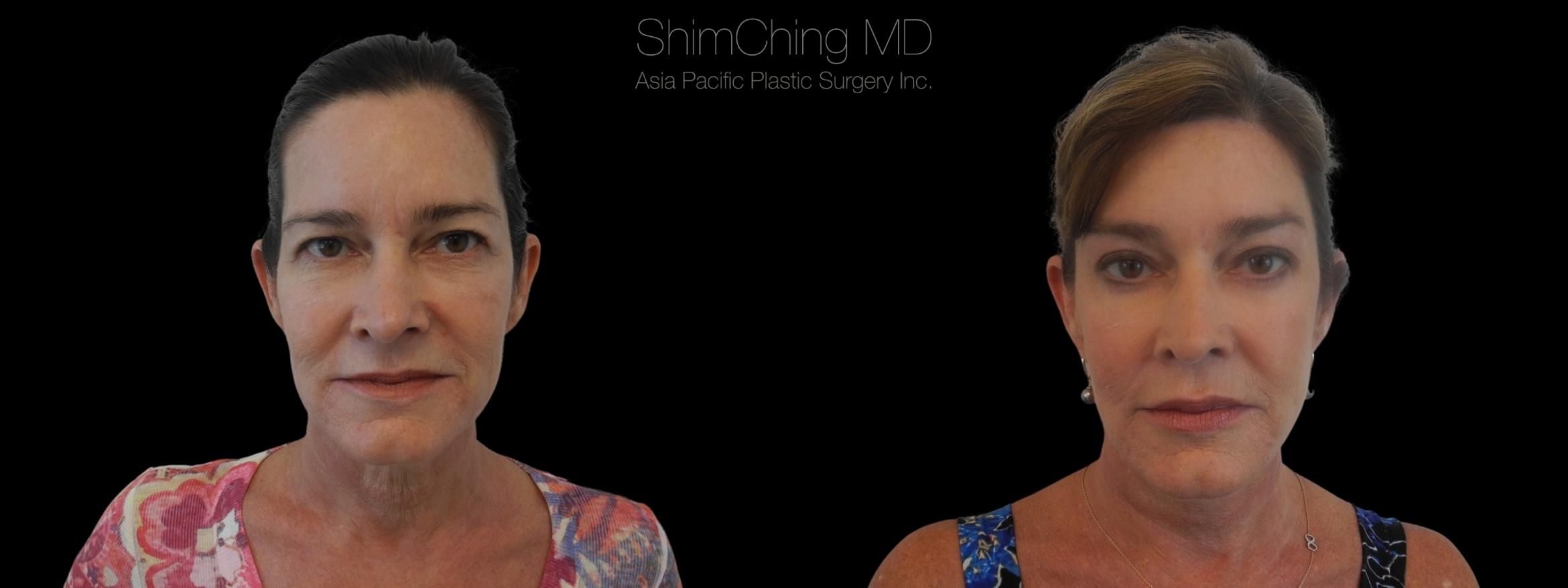 Browlift Case 15 Before & After Front | Honolulu, HI | Shim Ching, MD: Asia Pacific Plastic Surgery