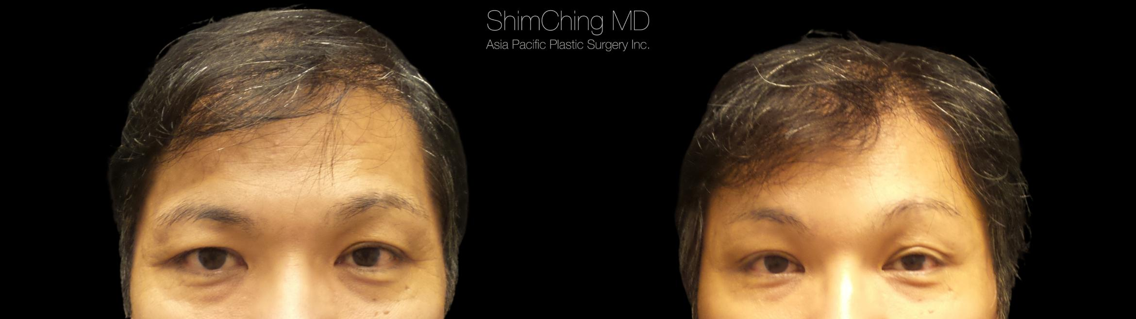 Browlift Case 328 Before & After Front | Honolulu, HI | Shim Ching, MD: Asia Pacific Plastic Surgery
