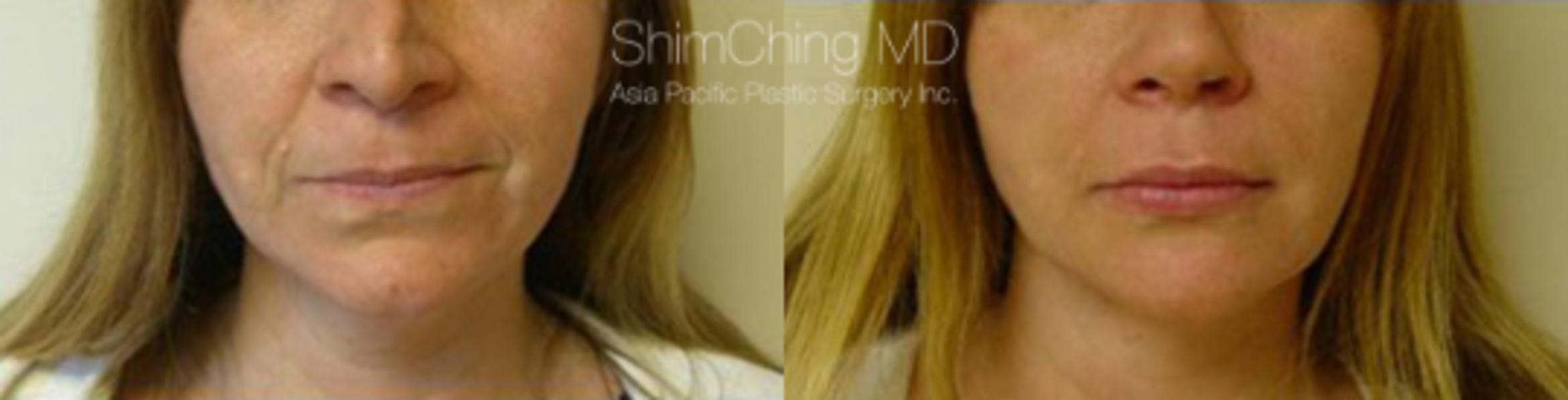 Chin Case 16 Before & After View #1 | Honolulu, HI | Shim Ching, MD: Asia Pacific Plastic Surgery