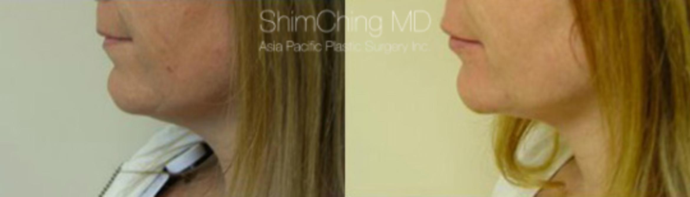 Chin Case 16 Before & After View #2 | Honolulu, HI | Shim Ching, MD: Asia Pacific Plastic Surgery
