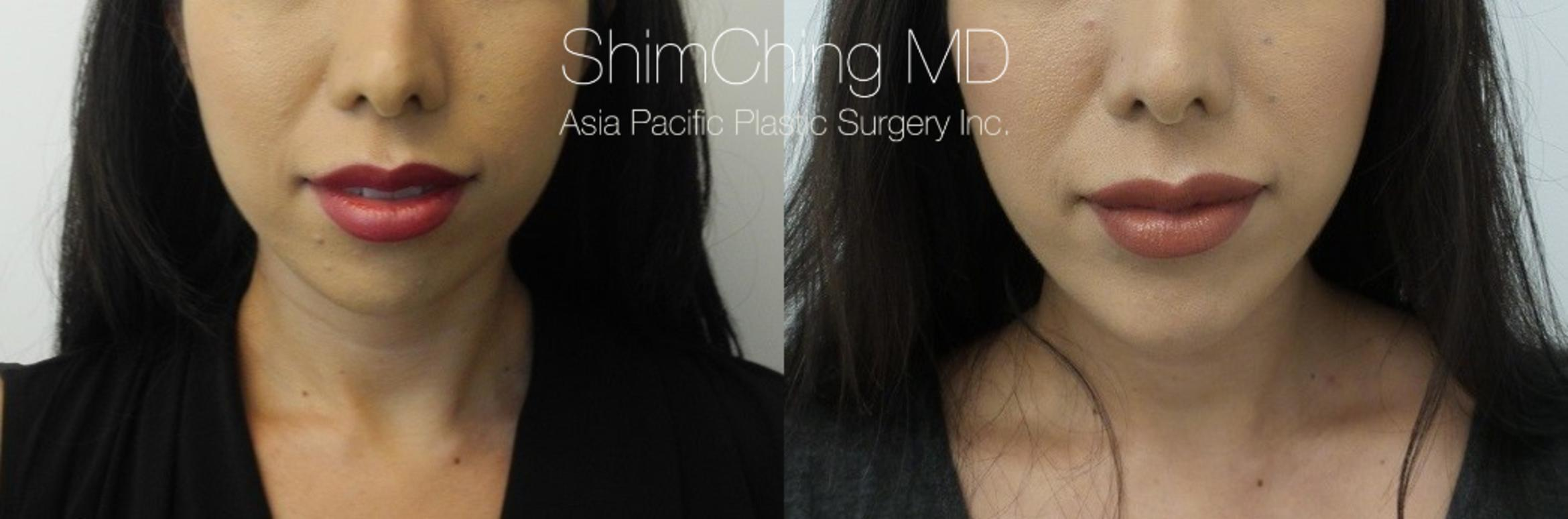 Chin Case 17 Before & After View #1 | Honolulu, HI | Shim Ching, MD: Asia Pacific Plastic Surgery