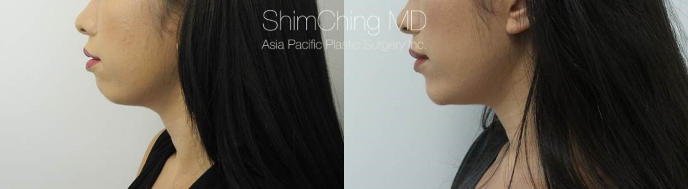 Chin Case 17 Before & After View #2 | Honolulu, HI | Shim Ching, MD: Asia Pacific Plastic Surgery