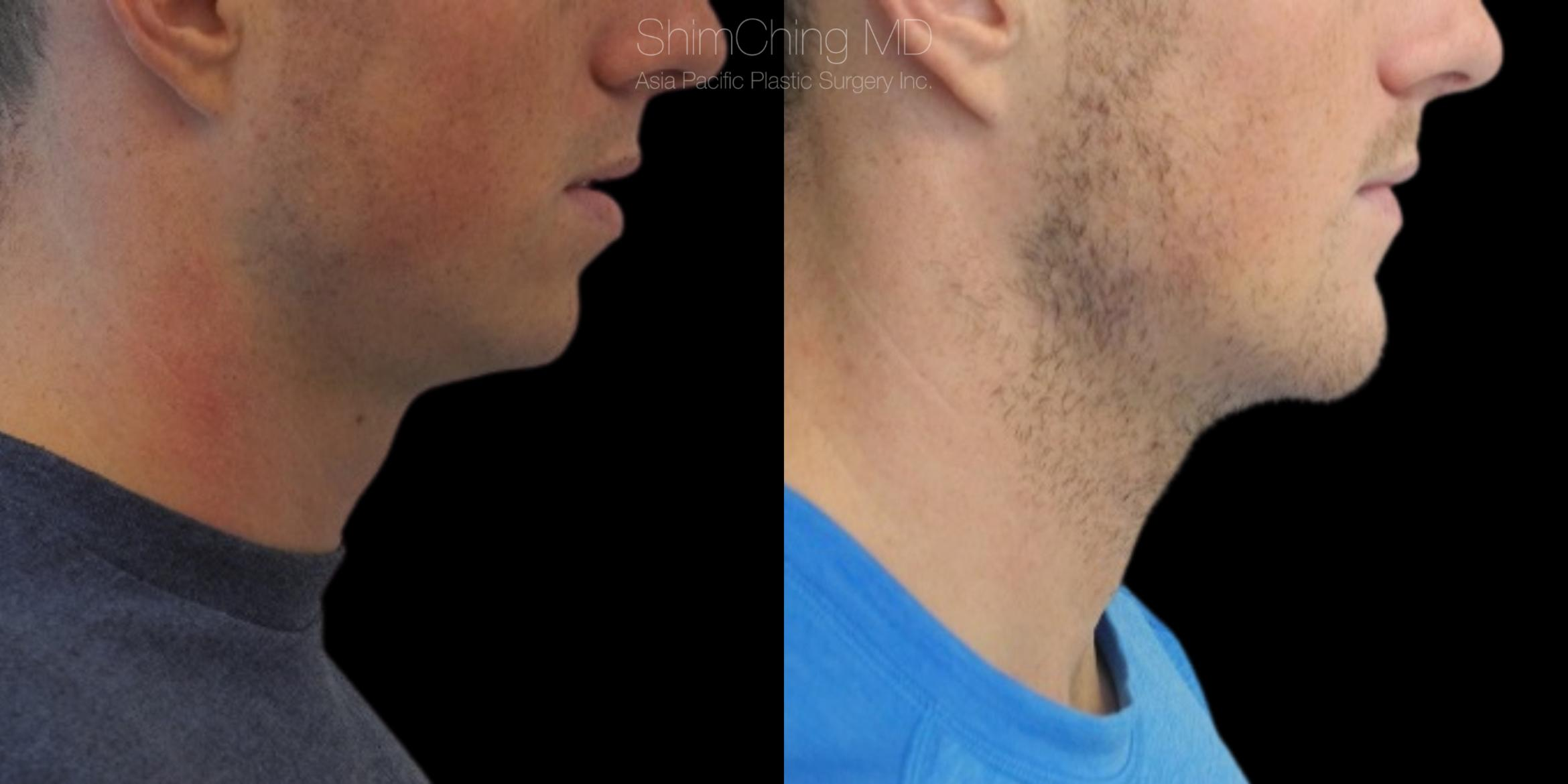 Chin Case 18 Before & After Left Side | Honolulu, HI | Shim Ching, MD: Asia Pacific Plastic Surgery