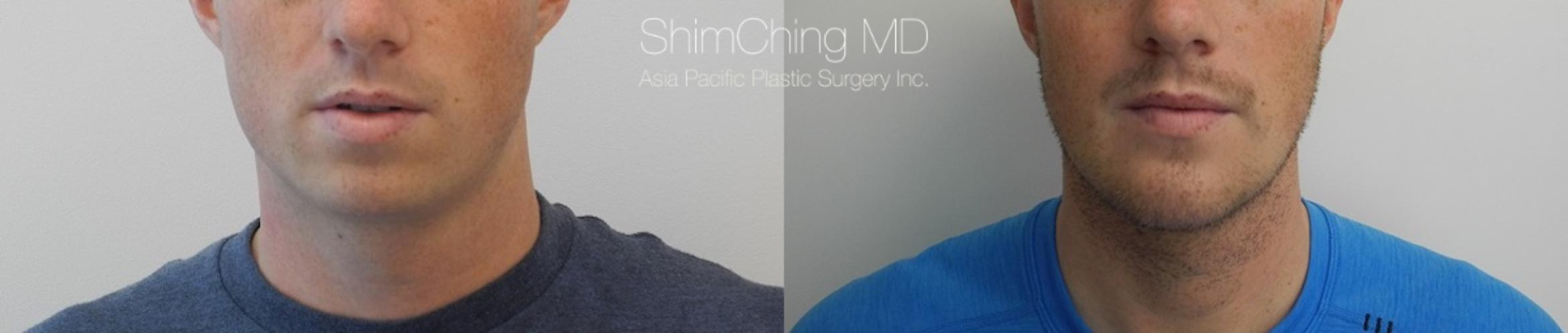 Chin Case 18 Before & After View #1 | Honolulu, HI | Shim Ching, MD: Asia Pacific Plastic Surgery