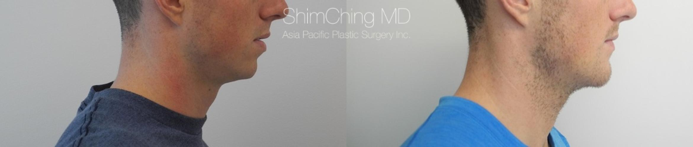 Chin Case 18 Before & After View #2 | Honolulu, HI | Shim Ching, MD: Asia Pacific Plastic Surgery