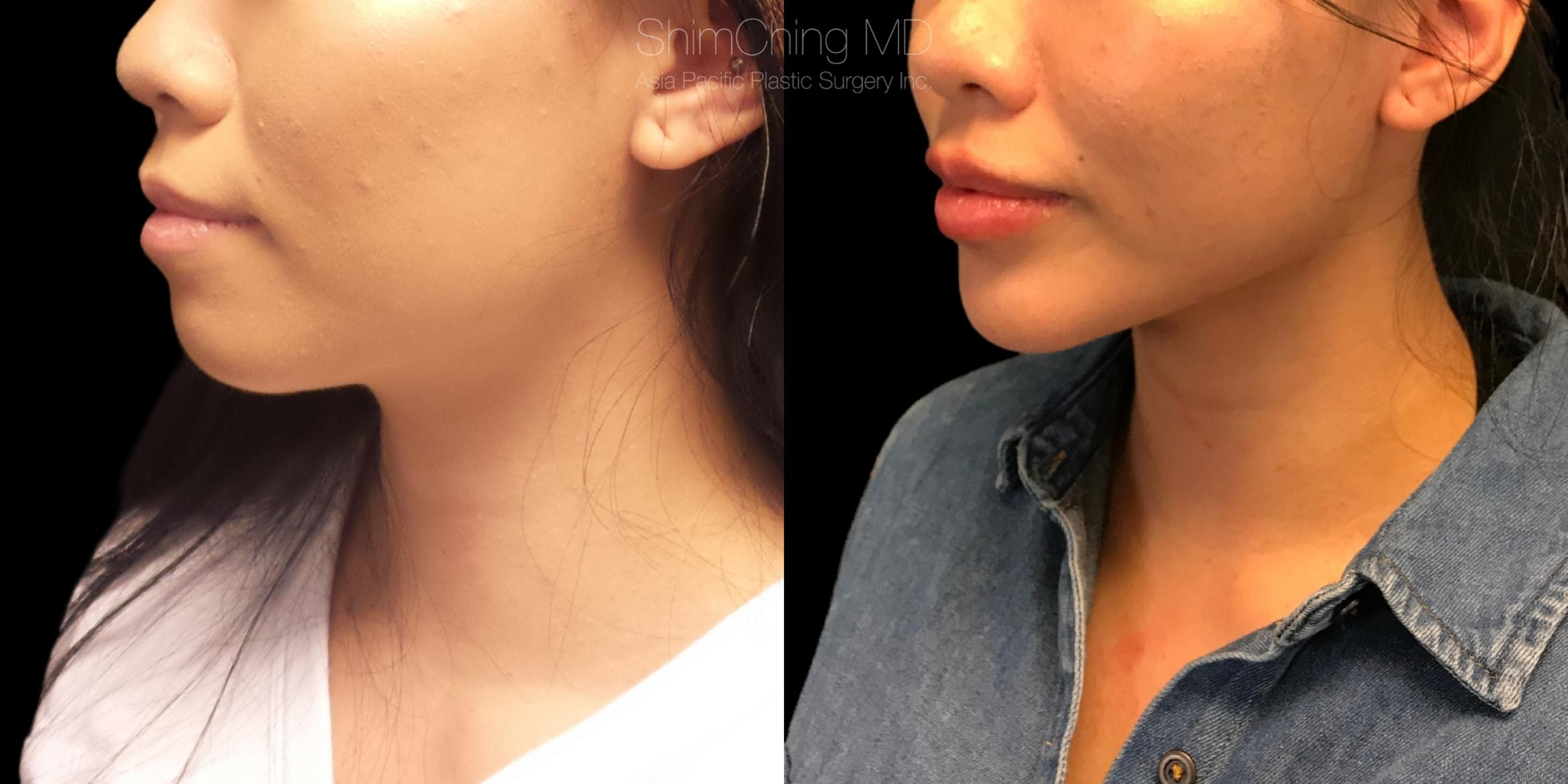 Chin Case 319 Before & After Right Oblique | Honolulu, HI | Shim Ching, MD: Asia Pacific Plastic Surgery