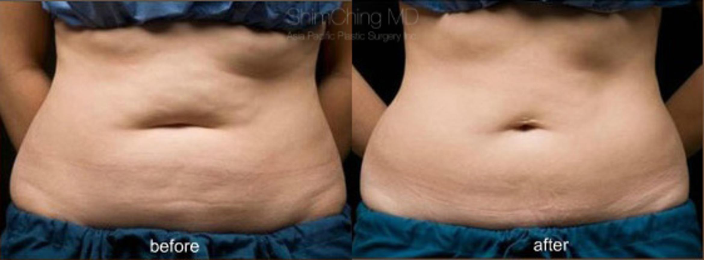 CoolSculpting Case 103 Before & After View #1 | Honolulu, HI | Shim Ching, MD: Asia Pacific Plastic Surgery