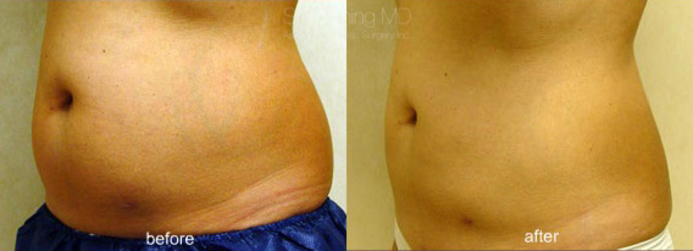CoolSculpting Case 107 Before & After View #1 | Honolulu, HI | Shim Ching, MD: Asia Pacific Plastic Surgery