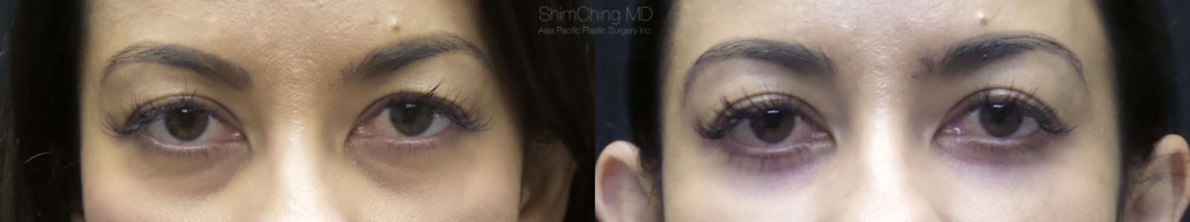 Eyelid Surgery Case 22 Before & After View #1 | Honolulu, HI | Shim Ching, MD: Asia Pacific Plastic Surgery