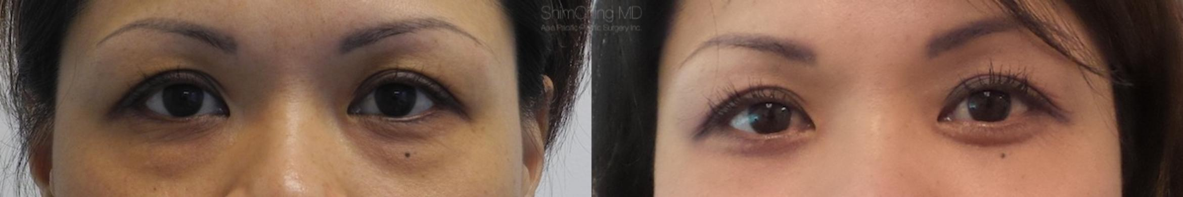 Eyelid Surgery Case 23 Before & After View #1 | Honolulu, HI | Shim Ching, MD: Asia Pacific Plastic Surgery