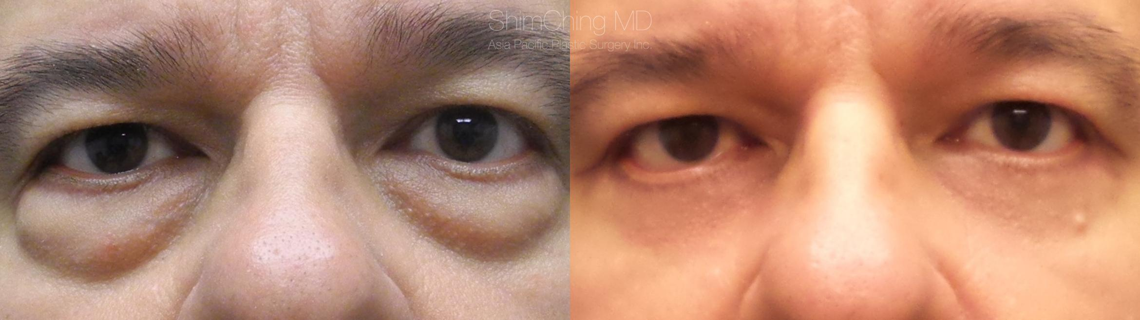 Eyelid Surgery Case 245 Before & After Front | Honolulu, HI | Shim Ching, MD: Asia Pacific Plastic Surgery