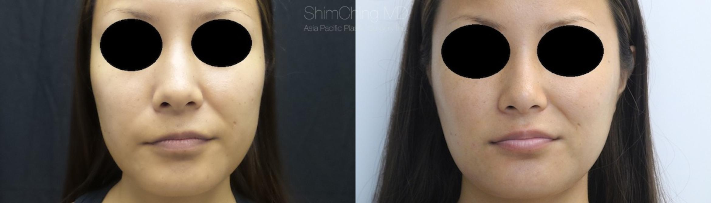 Facial Cosmetic Surgery Case 115 Before & After View #1 | Honolulu, HI | Shim Ching, MD: Asia Pacific Plastic Surgery