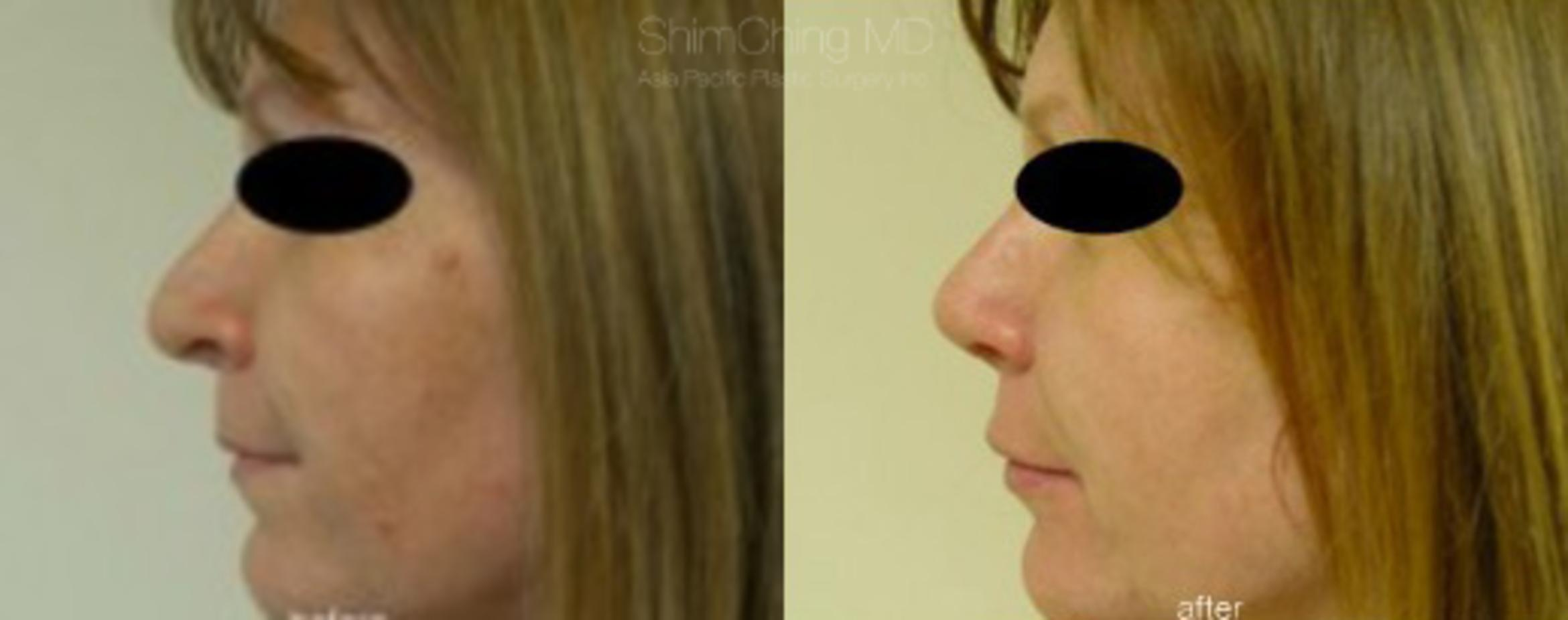 Facial Cosmetic Surgery Case 193 Before & After View #1 | Honolulu, HI | Shim Ching, MD: Asia Pacific Plastic Surgery