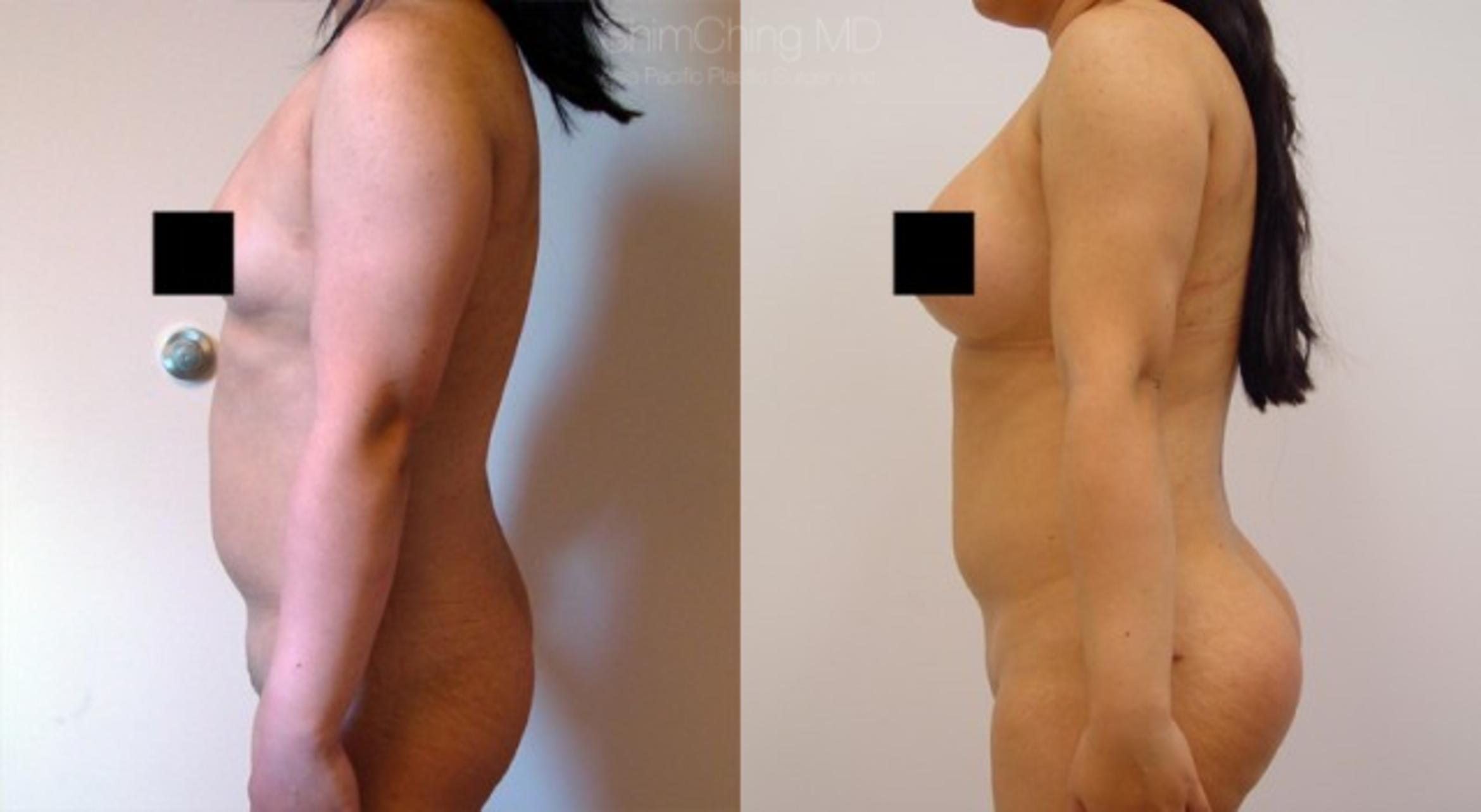 Fat Grafting Case 114 Before & After View #1 | Honolulu, HI | Shim Ching, MD: Asia Pacific Plastic Surgery