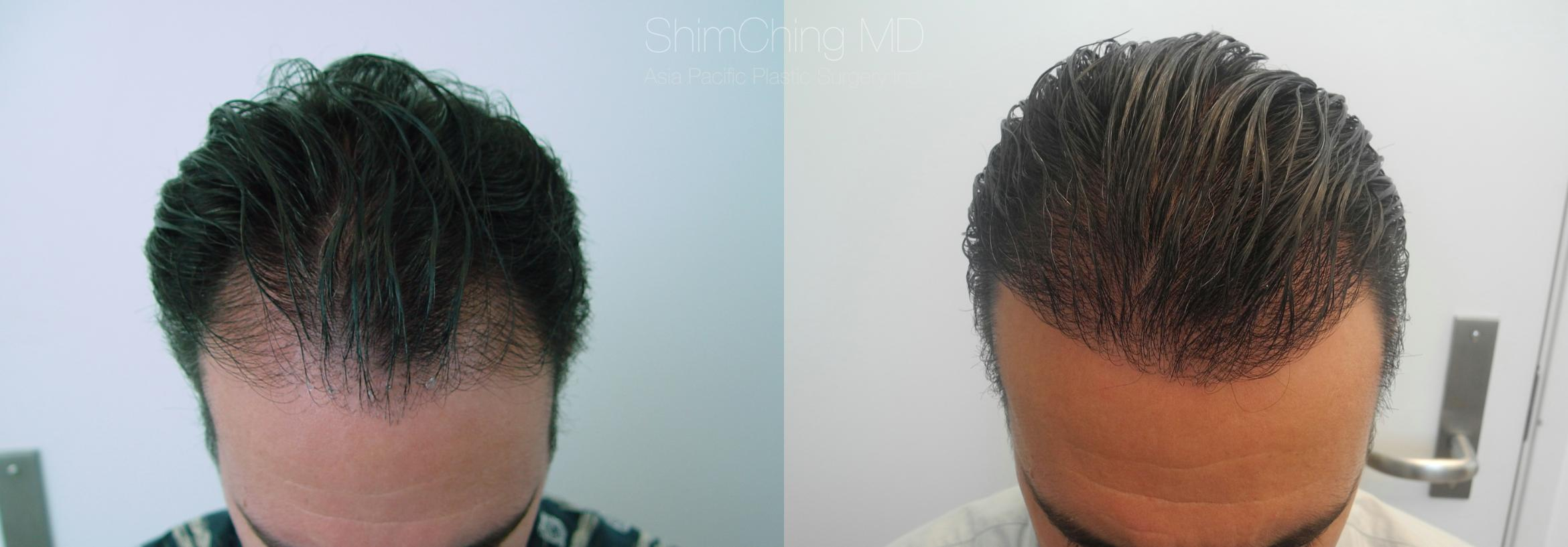 Hair Restoration Case 219 Before & After View #1 | Honolulu, HI | Shim Ching, MD: Asia Pacific Plastic Surgery
