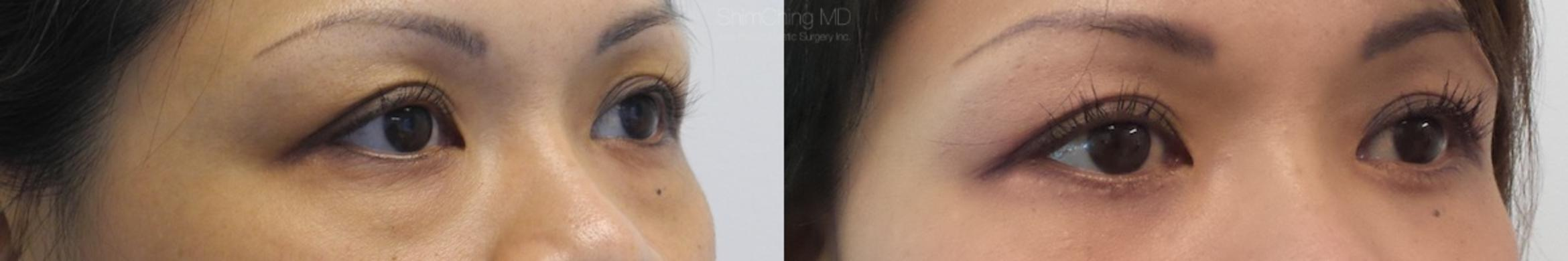 Homepage Featured Cases Case 165 Before & After View #2 | Honolulu, HI | Shim Ching, MD: Asia Pacific Plastic Surgery