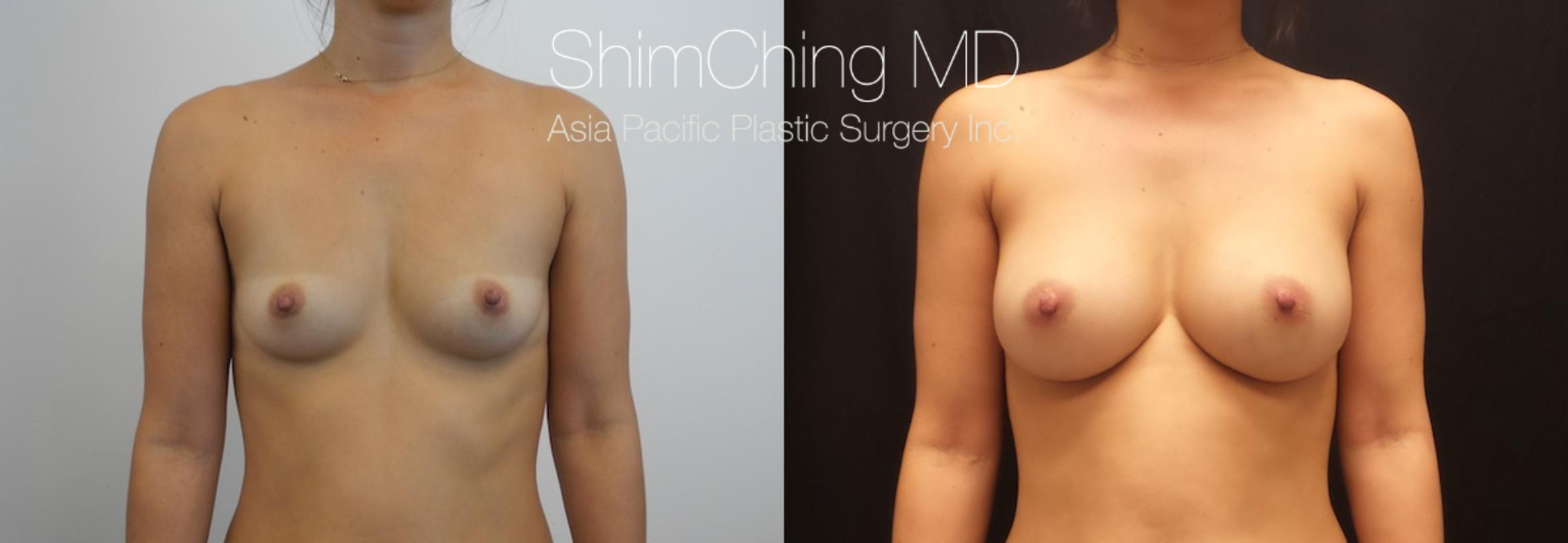 Homepage Featured Cases Case 167 Before & After View #1 | Honolulu, HI | Shim Ching, MD: Asia Pacific Plastic Surgery