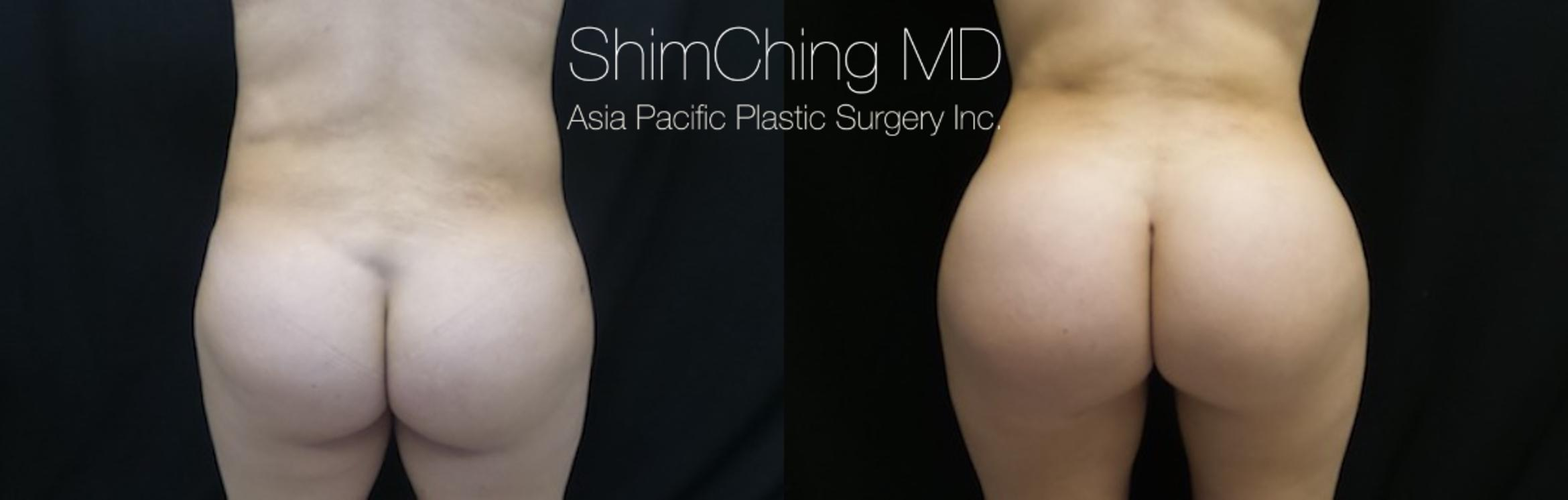 Homepage Featured Cases Case 175 Before & After View #1 | Honolulu, HI | Shim Ching, MD: Asia Pacific Plastic Surgery