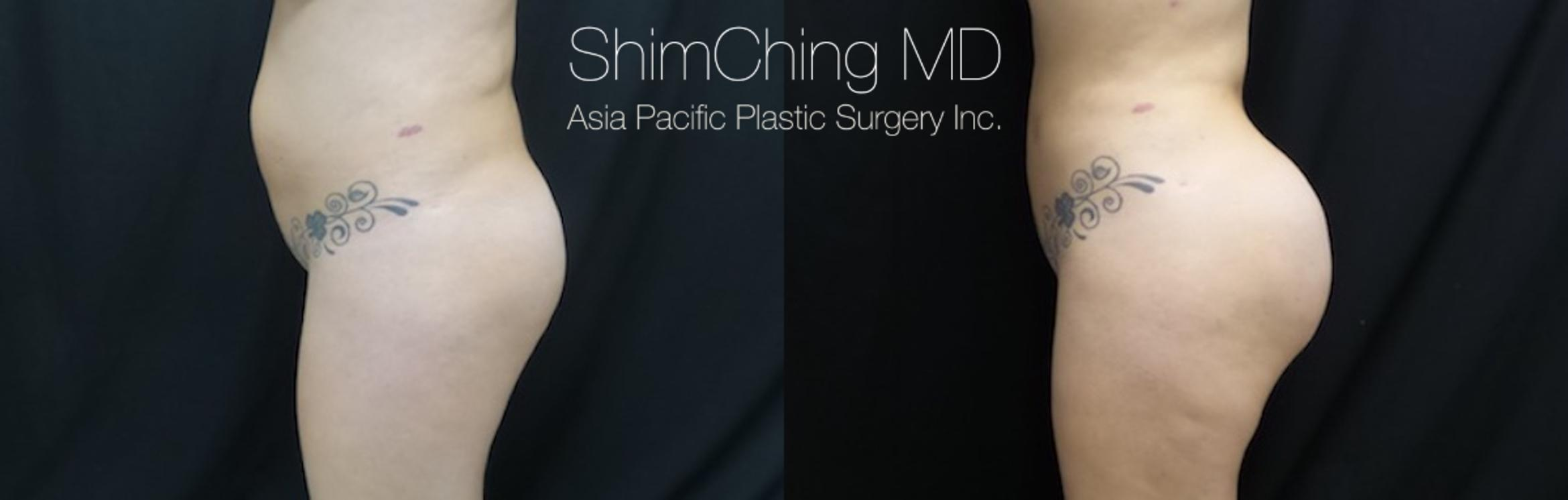 Homepage Featured Cases Case 175 Before & After View #2 | Honolulu, HI | Shim Ching, MD: Asia Pacific Plastic Surgery