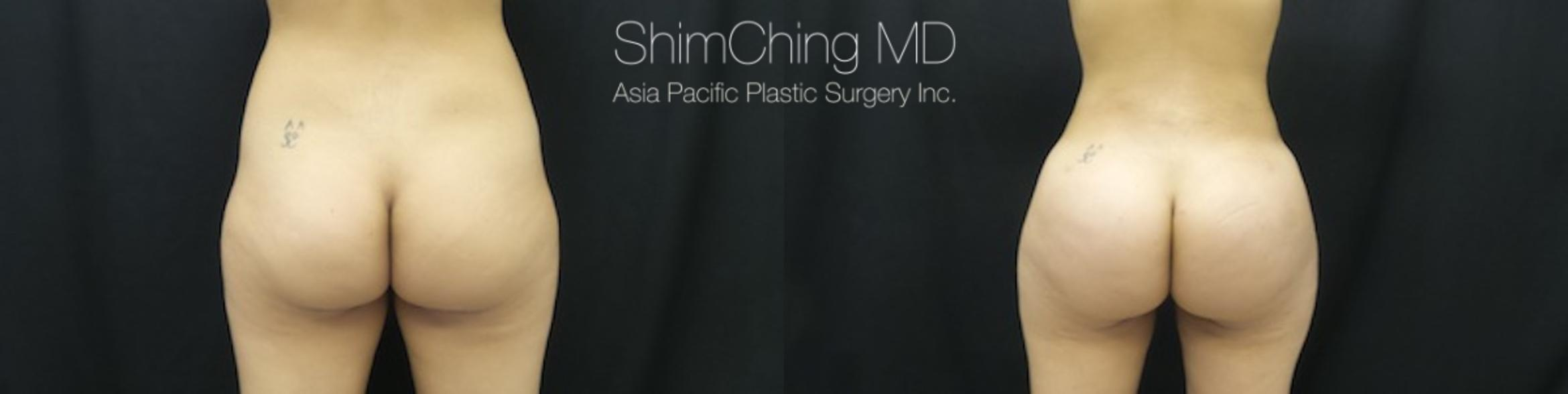 Homepage Featured Cases Case 176 Before & After View #1 | Honolulu, HI | Shim Ching, MD: Asia Pacific Plastic Surgery