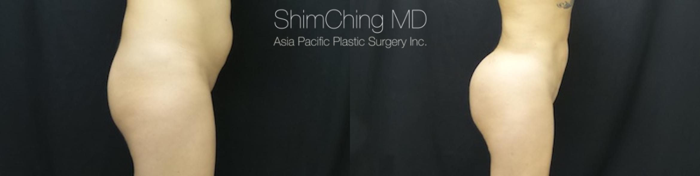 Homepage Featured Cases Case 176 Before & After View #2 | Honolulu, HI | Shim Ching, MD: Asia Pacific Plastic Surgery