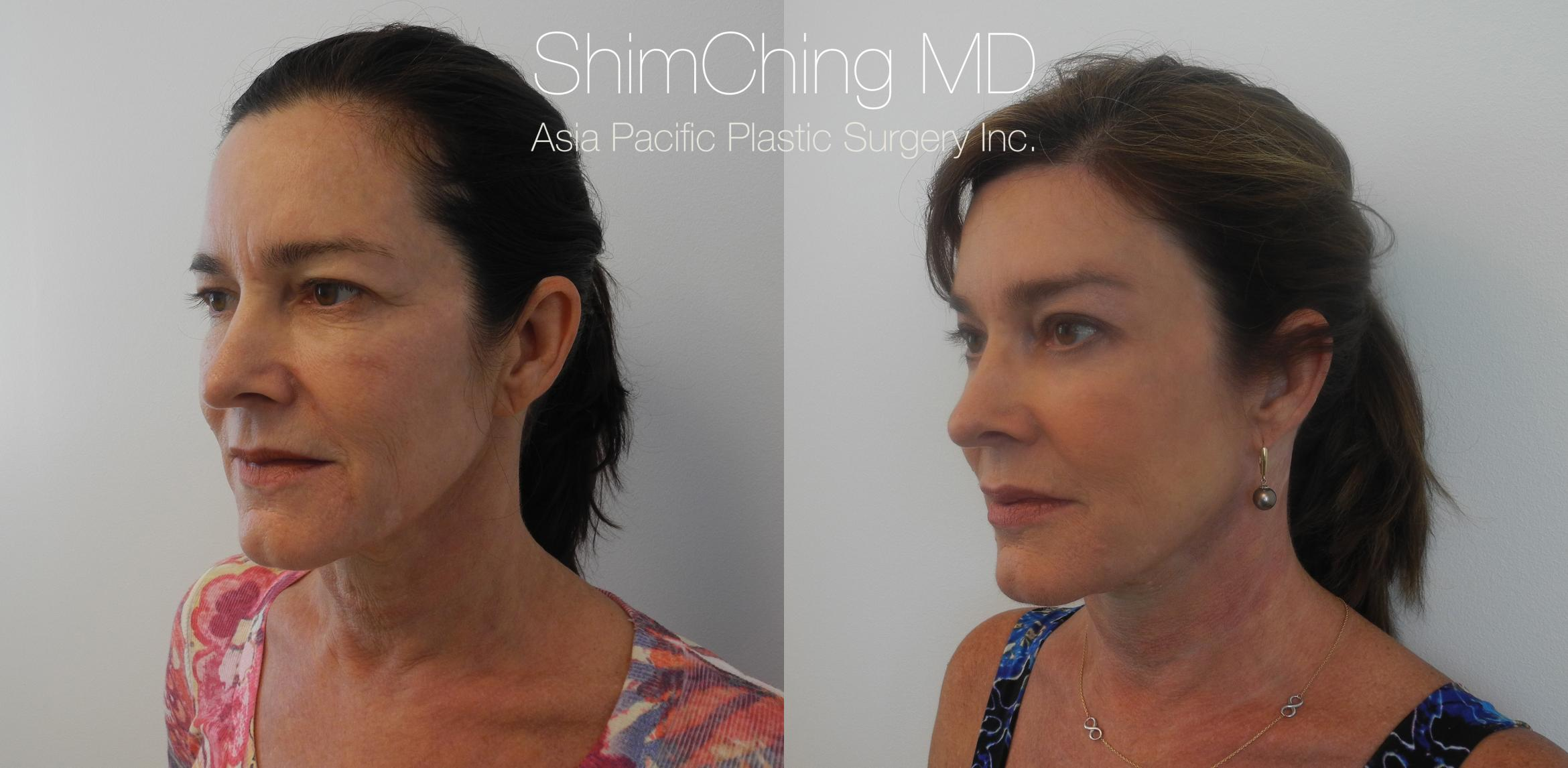 Homepage Featured Cases Case 177 Before & After View #1 | Honolulu, HI | Shim Ching, MD: Asia Pacific Plastic Surgery