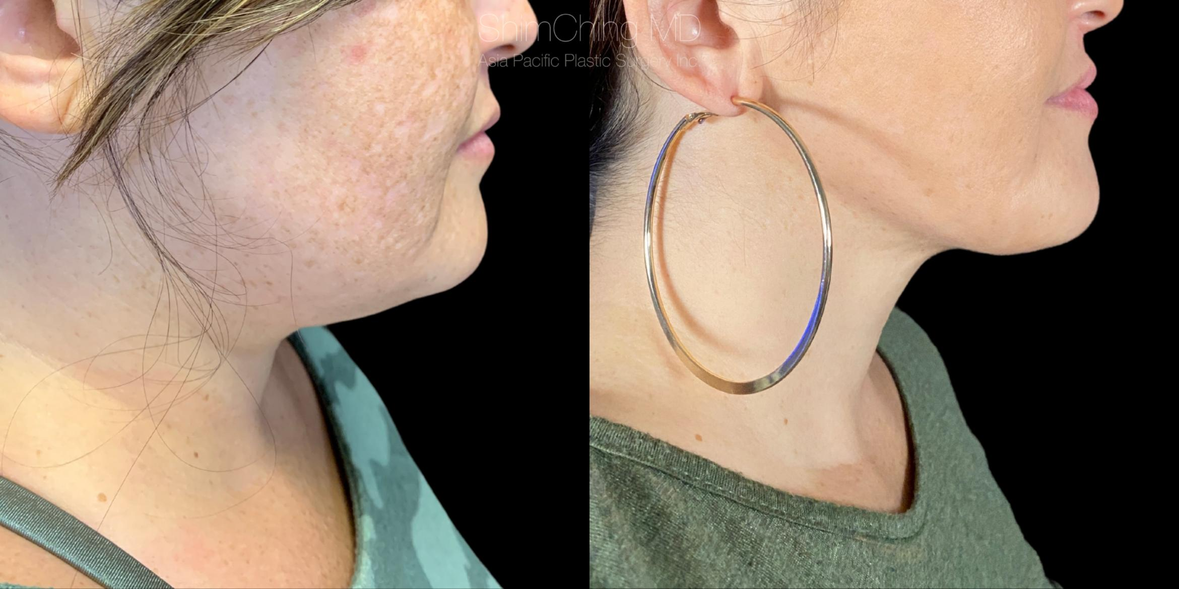 Laser Liposuction Case 320 Before & After Right Side | Honolulu, HI | Shim Ching, MD: Asia Pacific Plastic Surgery