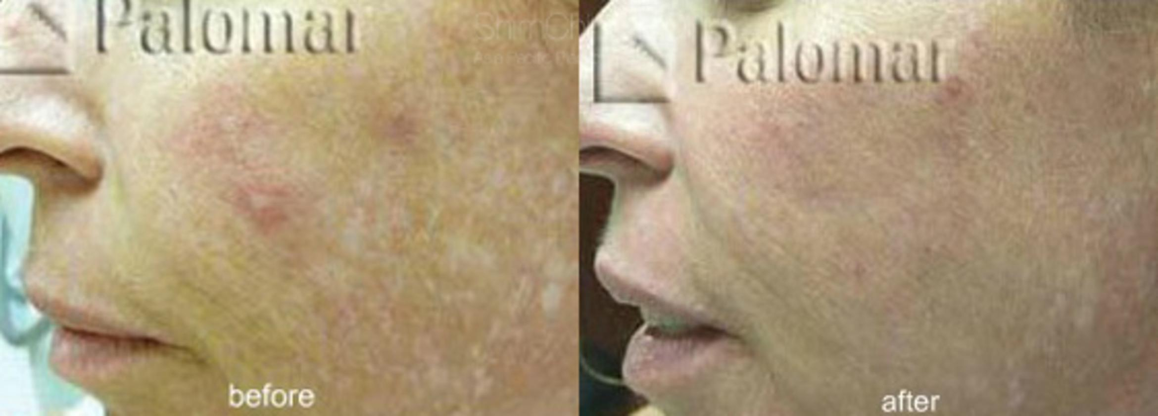 Laser Resurfacing Case 139 Before & After View #1 | Honolulu, HI | Shim Ching, MD: Asia Pacific Plastic Surgery